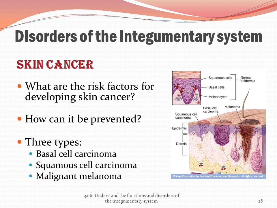 Disorders of the integumentary system Skin cancer What are the risk factors for developing skin cancer? How can it be prevented? Three types: Basal ce