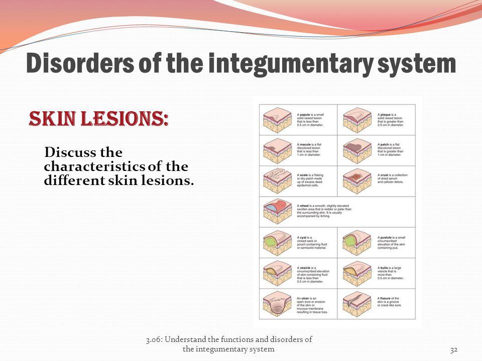 Disorders of the integumentary system Skin lesions: Discuss the characteristics of the different skin lesions. 3.06: Understand the functions and diso