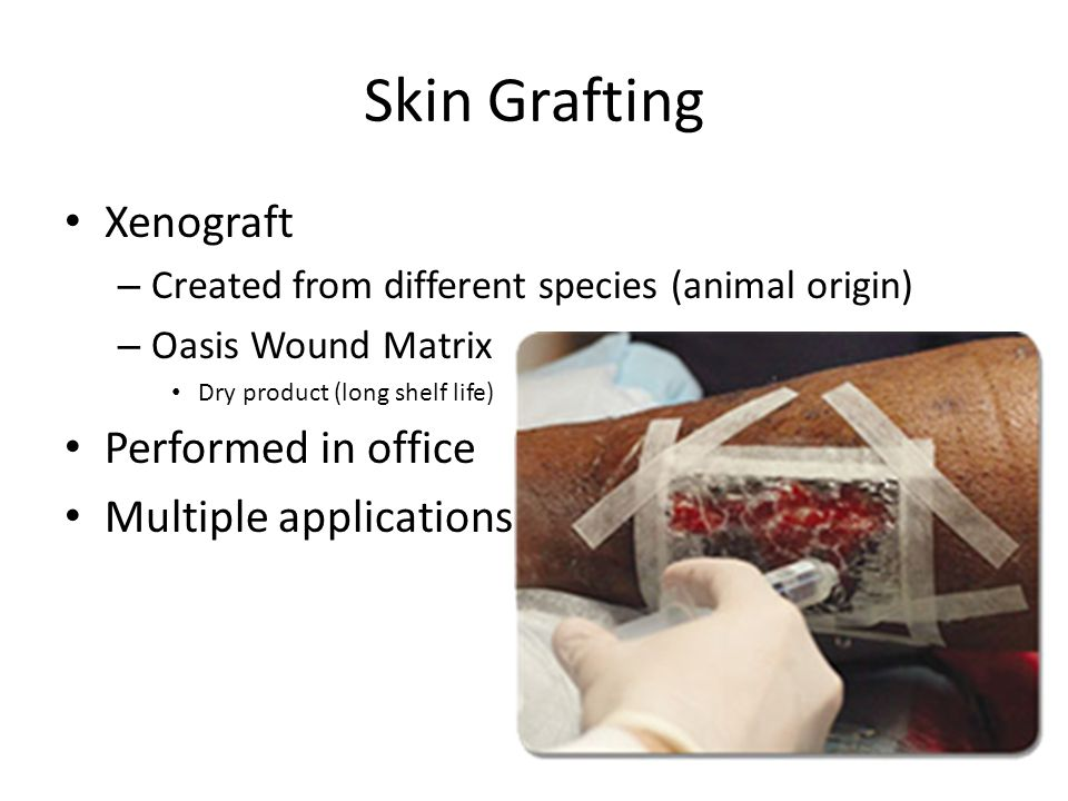 Skin Grafting Xenograft – Created from different species (animal origin) – Oasis Wound Matrix Dry product (long shelf life) Performed in office Multip