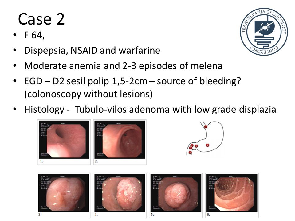 Case 2 F 64, Dispepsia, NSAID and warfarine Moderate anemia and 2-3 episodes of melena EGD – D2 sesil polip 1,5-2cm – source of bleeding.