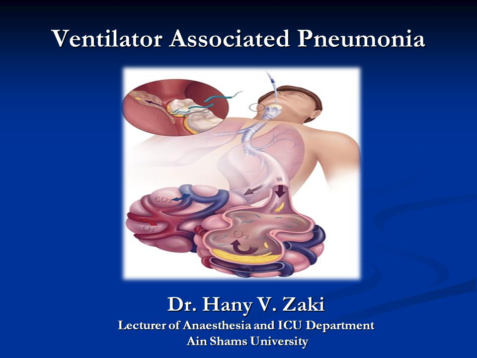 Ventilator Associated Pneumonia Dr. Hany V. Zaki Lecturer of Anaesthesia and ICU Department Ain Shams University Ain Shams University