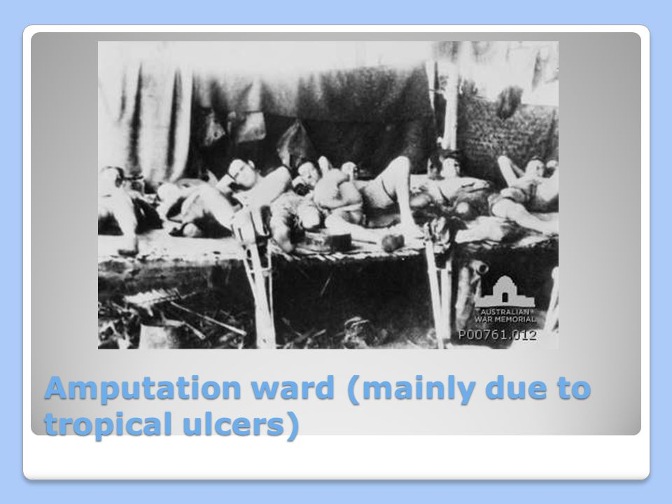 Amputation ward (mainly due to tropical ulcers)