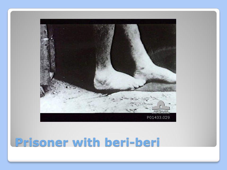 Prisoner with beri-beri