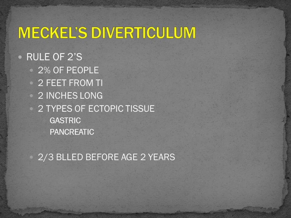 RULE OF 2'S 2% OF PEOPLE 2 FEET FROM TI 2 INCHES LONG 2 TYPES OF ECTOPIC TISSUE GASTRIC PANCREATIC 2/3 BLLED BEFORE AGE 2 YEARS