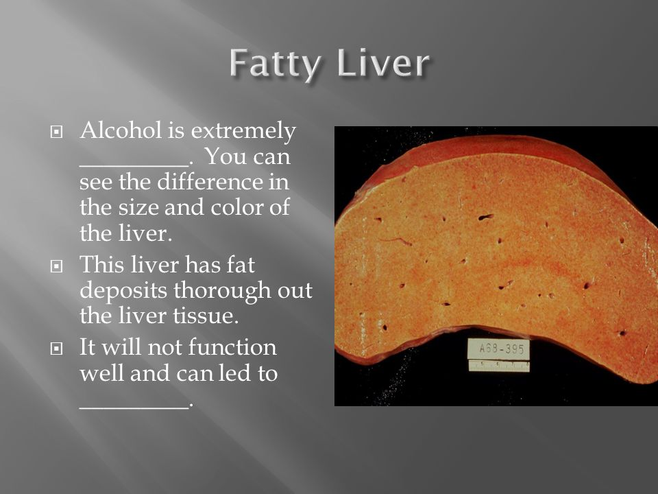  Alcohol is extremely _________. You can see the difference in the size and color of the liver.