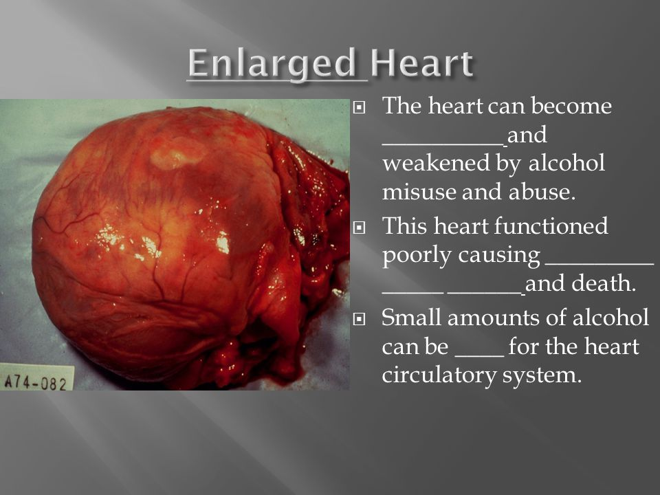  The heart can become __________ and weakened by alcohol misuse and abuse.