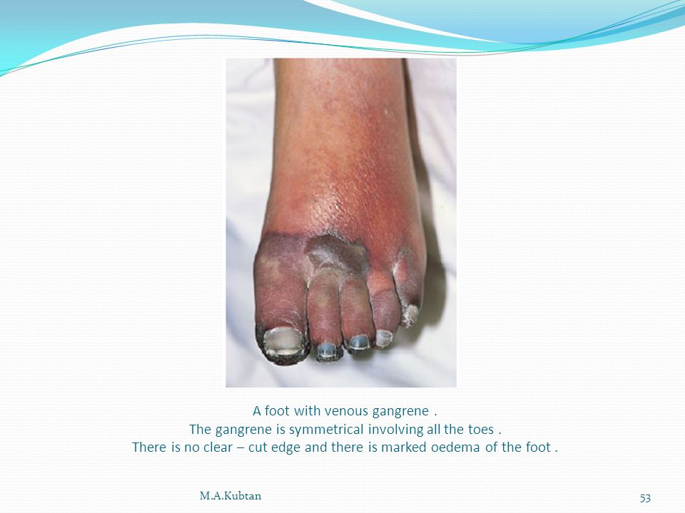 A foot with venous gangrene. The gangrene is symmetrical involving all the toes.