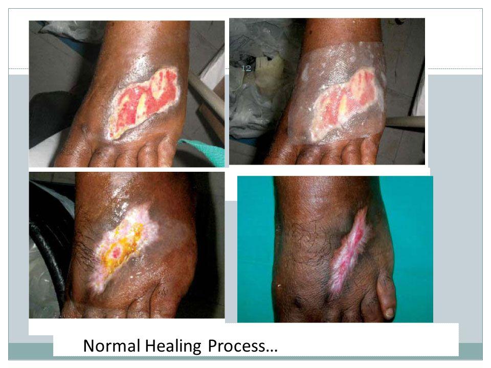 Normal Healing Process… 12