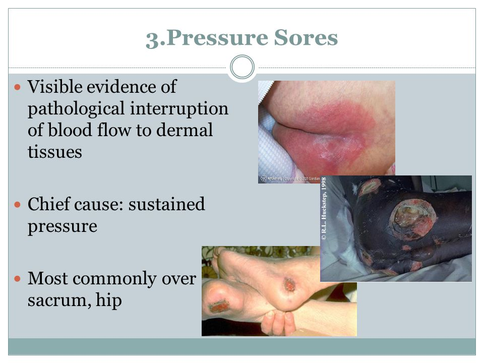 3.Pressure Sores Visible evidence of pathological interruption of blood flow to dermal tissues Chief cause: sustained pressure Most commonly over sacr