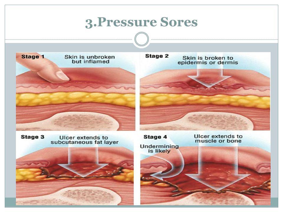 3.Pressure Sores