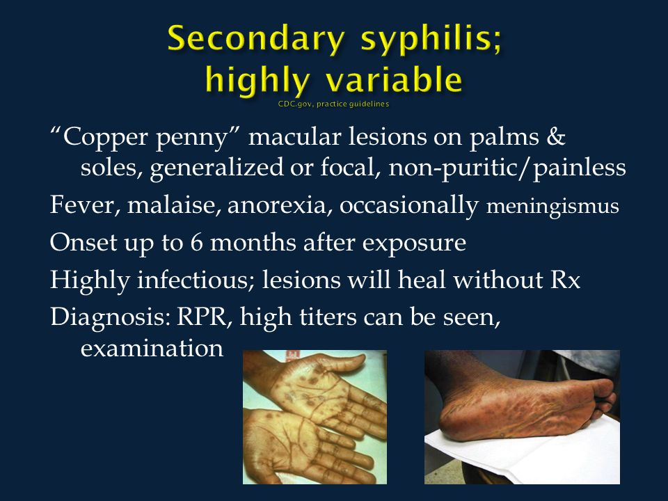 Copper penny macular lesions on palms & soles, generalized or focal, non-puritic/painless Fever, malaise, anorexia, occasionally meningismus Onset up to 6 months after exposure Highly infectious; lesions will heal without Rx Diagnosis: RPR, high titers can be seen, examination