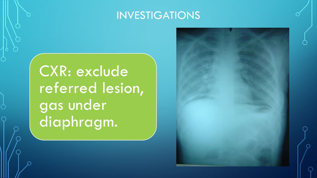 INVESTIGATIONS CXR: exclude referred lesion, gas under diaphragm.