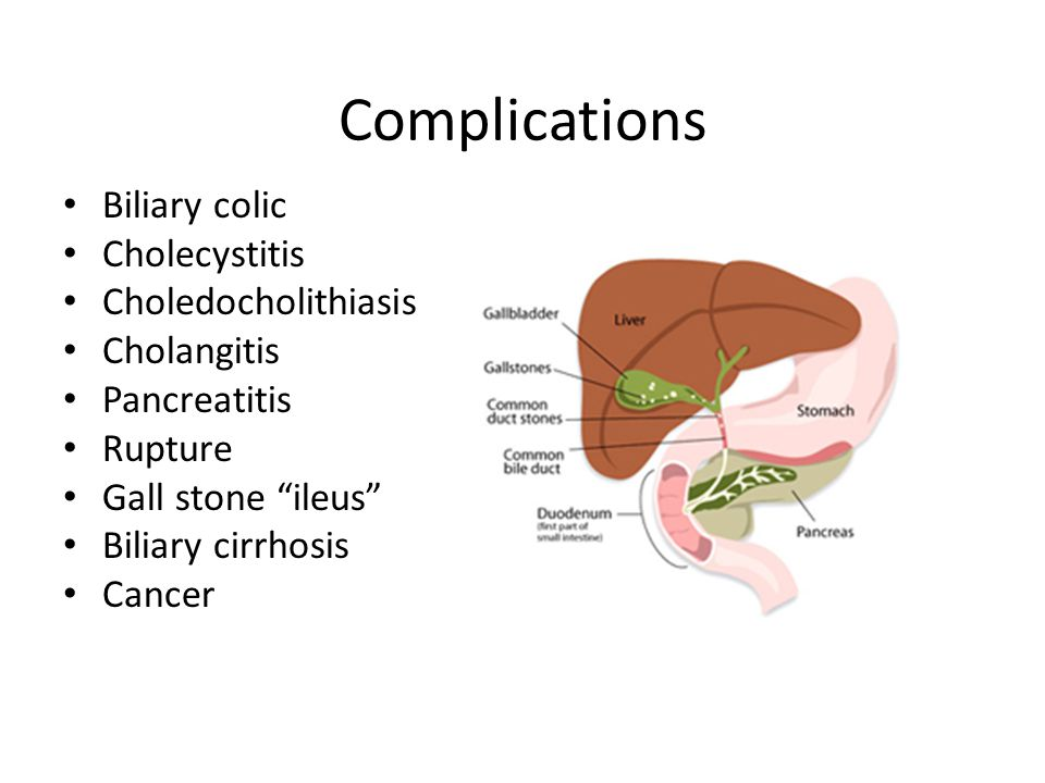 "Complications Biliary colic Cholecystitis Choledocholithiasis Cholangitis Pancreatitis Rupture Gall stone ""ileus"" Biliary cirrhosis Cancer"