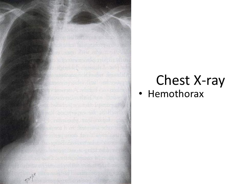 Chest X-ray Hemothorax