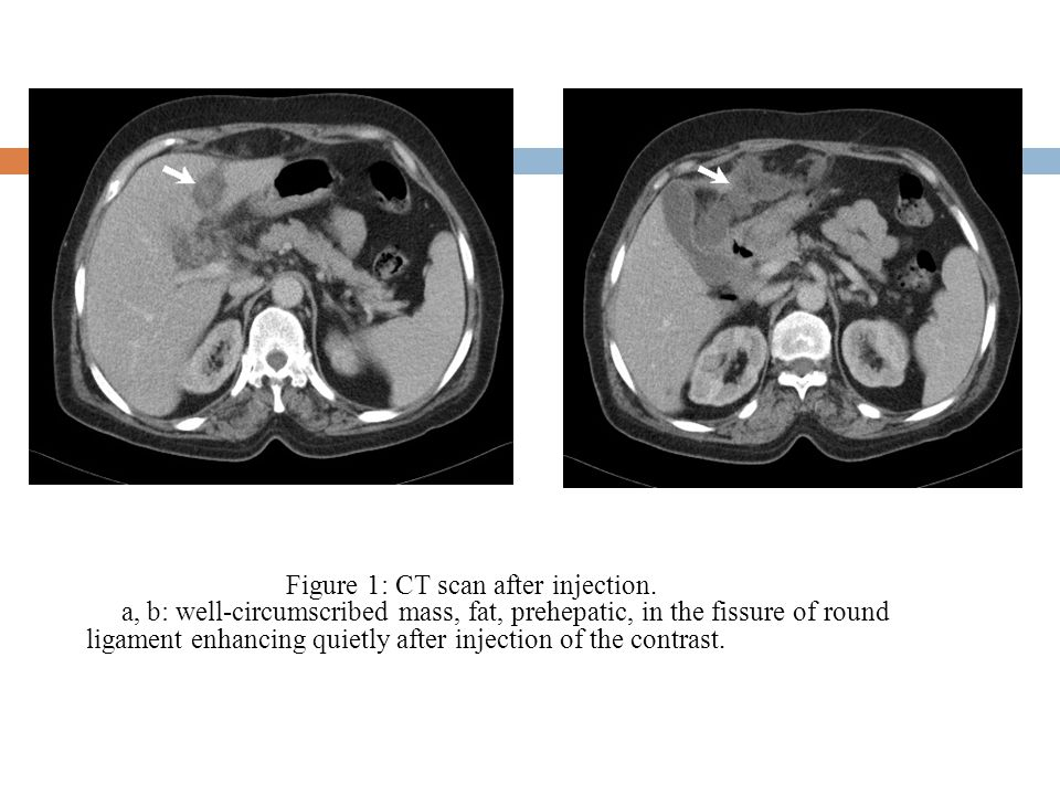Figure 1: CT scan after injection.