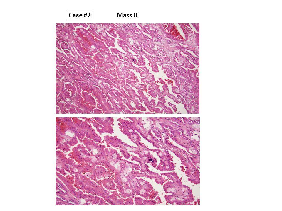 Mass B Case #2