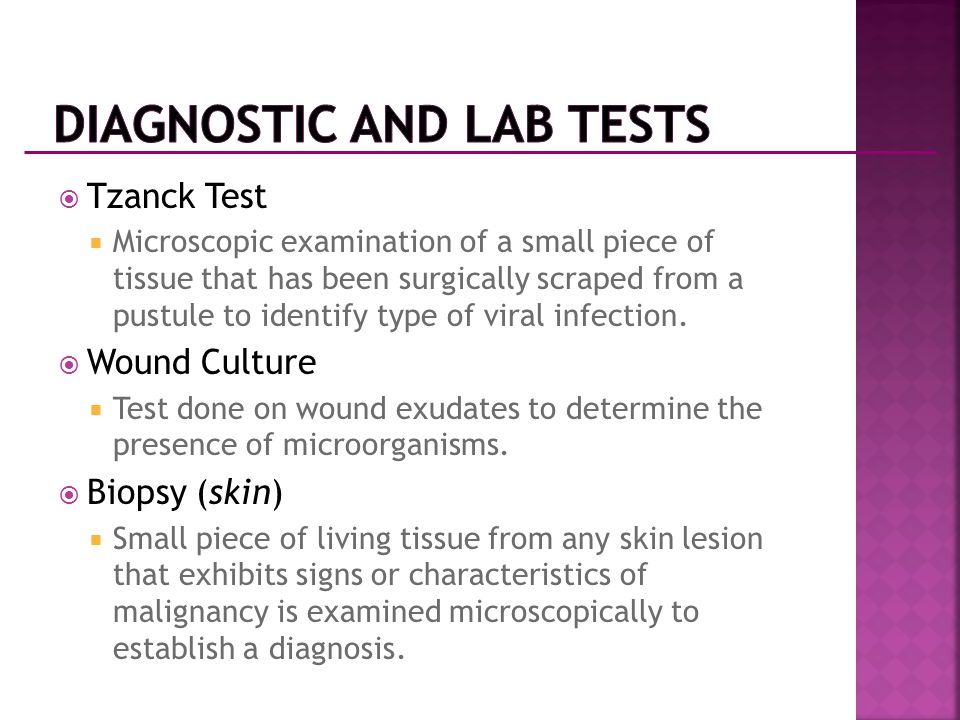  Tzanck Test  Microscopic examination of a small piece of tissue that has been surgically scraped from a pustule to identify type of viral infection