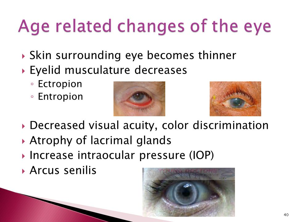  Skin surrounding eye becomes thinner  Eyelid musculature decreases ◦ Ectropion ◦ Entropion  Decreased visual acuity, color discrimination  Atroph