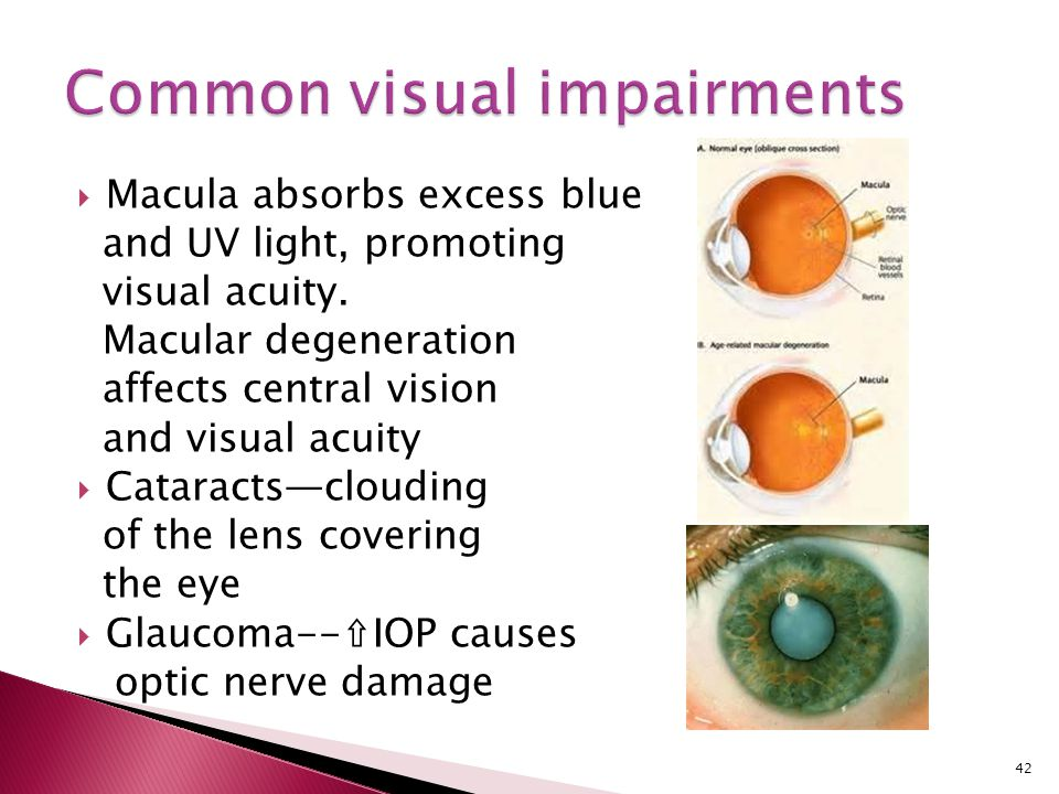  Macula absorbs excess blue and UV light, promoting visual acuity. Macular degeneration affects central vision and visual acuity  Cataracts—clouding