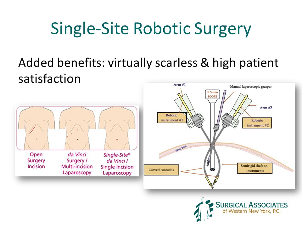 Single-Site Robotic Surgery Added benefits: virtually scarless & high patient satisfaction