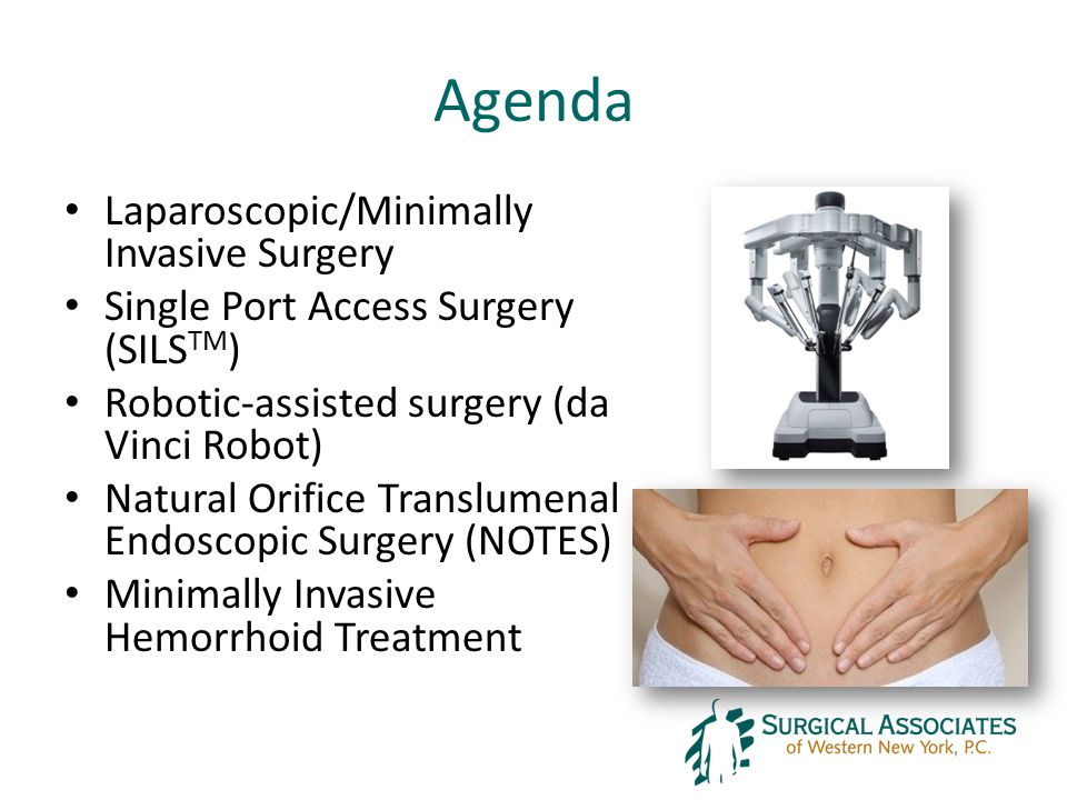 Agenda Laparoscopic/Minimally Invasive Surgery Single Port Access Surgery (SILS TM ) Robotic-assisted surgery (da Vinci Robot) Natural Orifice Translumenal Endoscopic Surgery (NOTES) Minimally Invasive Hemorrhoid Treatment