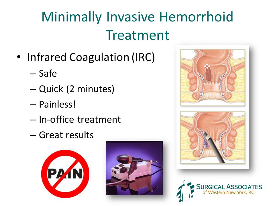 Minimally Invasive Hemorrhoid Treatment Infrared Coagulation (IRC) – Safe – Quick (2 minutes) – Painless.