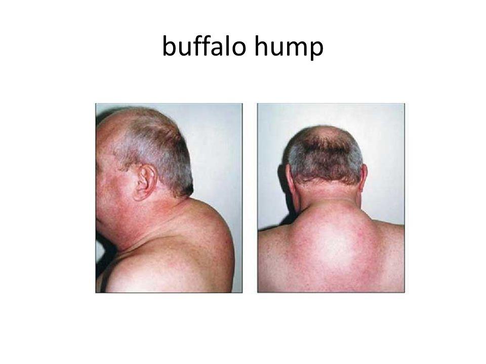 buffalo hump