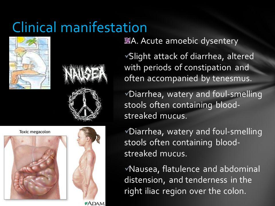 Clinical manifestation A.