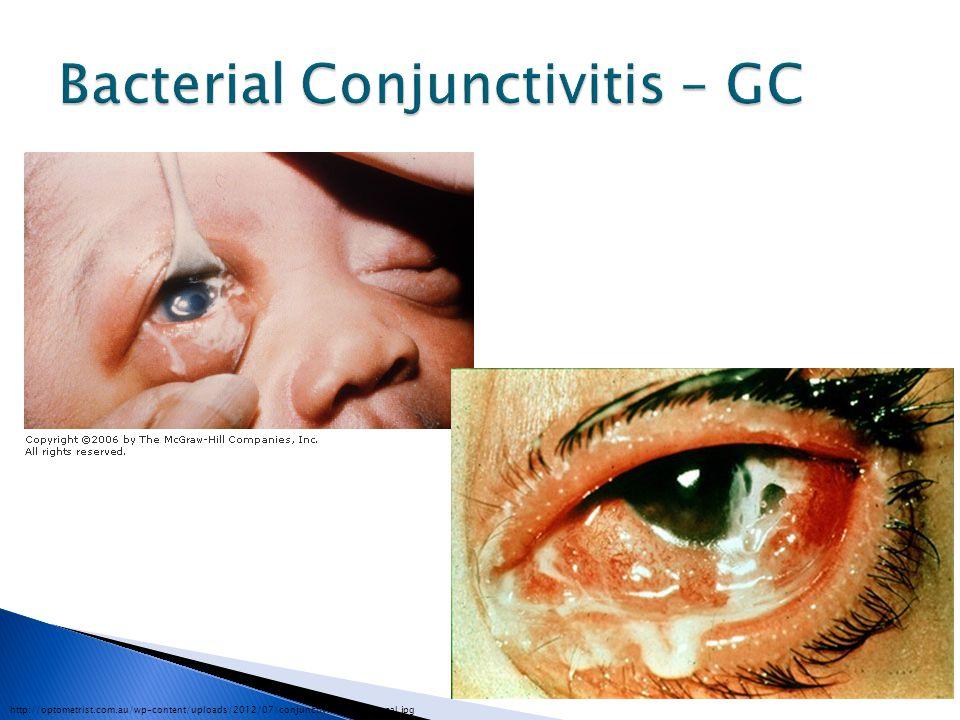 http://optometrist.com.au/wp-content/uploads/2012/07/conjunctivitis-gonoccocal.jpg