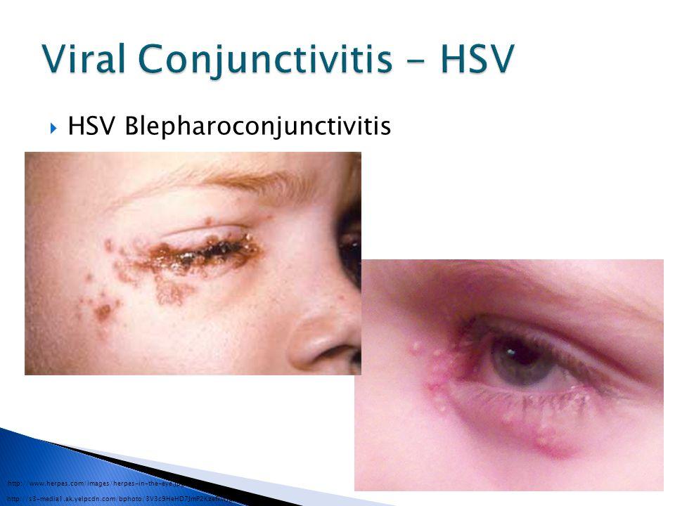  HSV Blepharoconjunctivitis http://s3-media1.ak.yelpcdn.com/bphoto/3V3c9HeHD7JmP2KzefkWJg/l.jpg http://www.herpes.com/images/herpes-in-the-eye.jpg