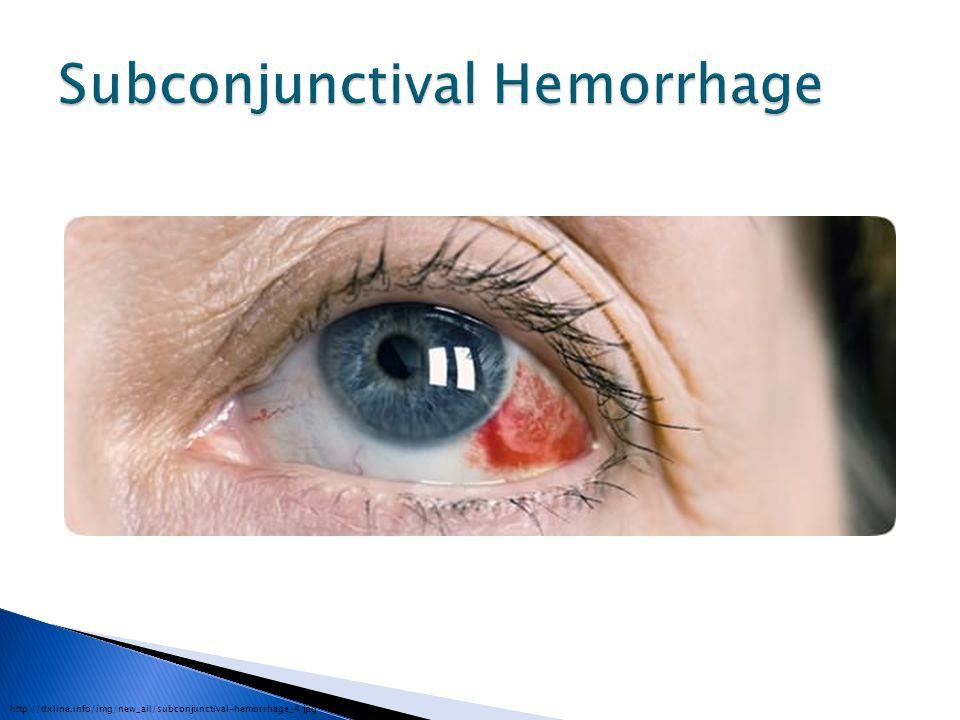 http://dxline.info/img/new_ail/subconjunctival-hemorrhage_4.jpg