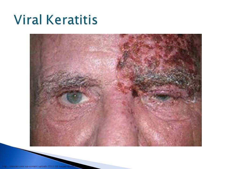 http://siklusair.com/wp-content/uploads/2013/08/herpes-zoster-keratitis.jpg