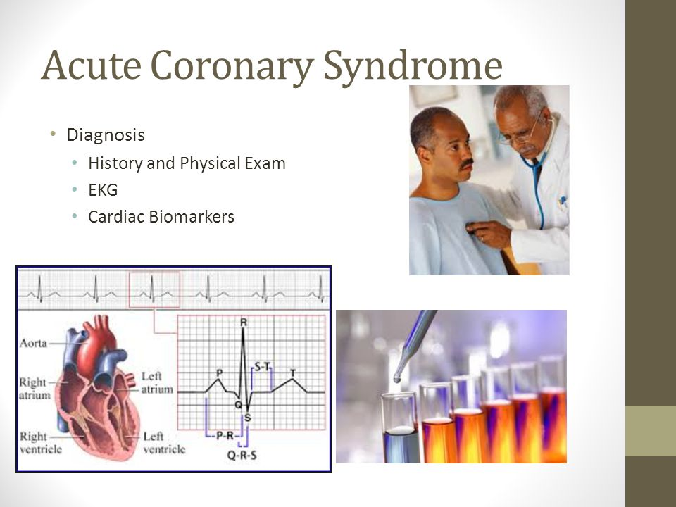 Acute Coronary Syndrome Diagnosis History and Physical Exam EKG Cardiac Biomarkers