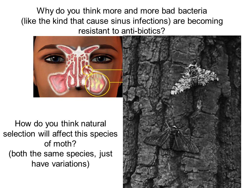 Why do you think more and more bad bacteria (like the kind that cause sinus infections) are becoming resistant to anti-biotics.