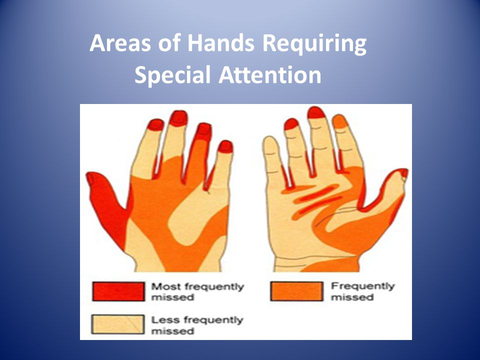 Areas of Hands Requiring Special Attention