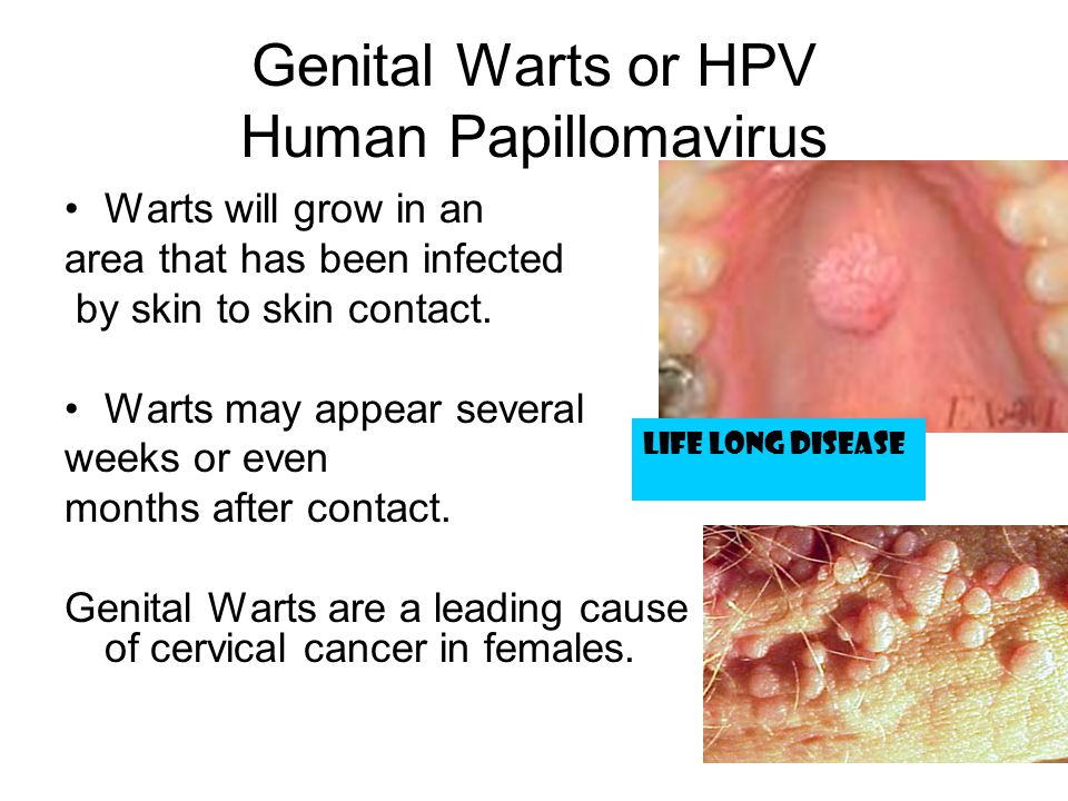 Genital Warts or HPV Human Papillomavirus Warts will grow in an area that has been infected by skin to skin contact. Warts may appear several weeks or