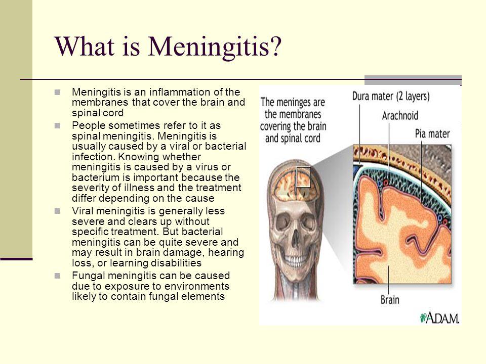 What is Meningitis.