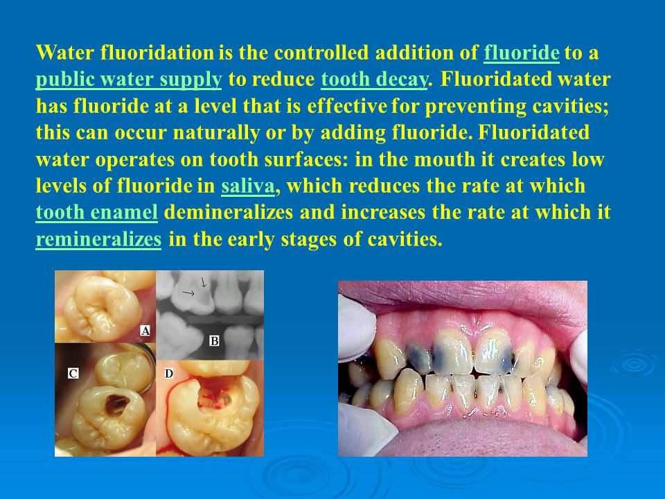 Water fluoridation is the controlled addition of fluoride to a public water supply to reduce tooth decay.