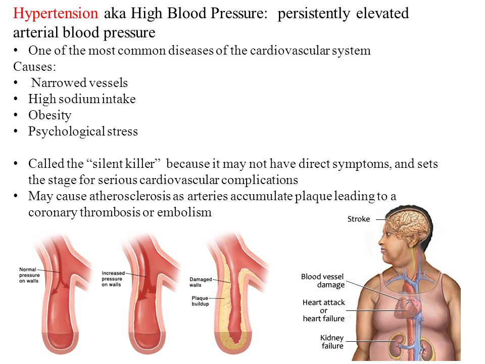 7 Hypertension aka High Blood Pressure: persistently elevated arterial blood pressure One of the most common diseases of the cardiovascular system Causes: Narrowed vessels High sodium intake Obesity Psychological stress Called the silent killer because it may not have direct symptoms, and sets the stage for serious cardiovascular complications May cause atherosclerosis as arteries accumulate plaque leading to a coronary thrombosis or embolism
