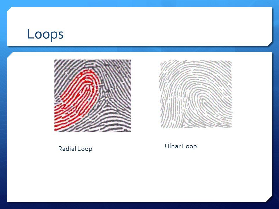 Loops Radial Loop Ulnar Loop