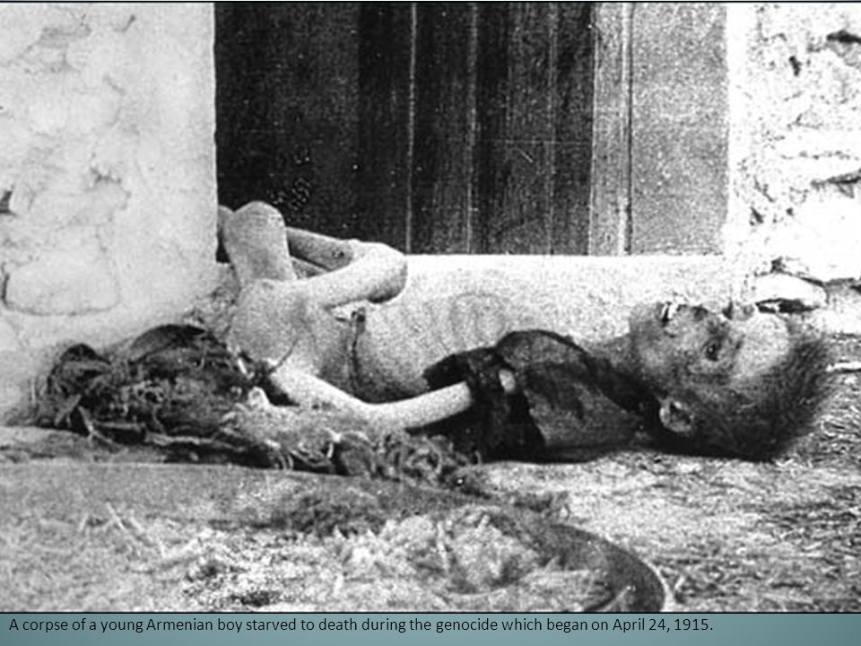 A corpse of a young Armenian boy starved to death during the genocide which began on April 24, 1915.
