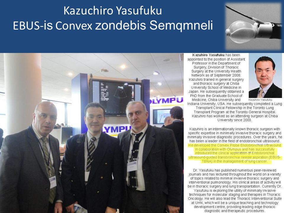 Kazuchiro Yasufuku EBUS- is Convex zondebis Semqmneli