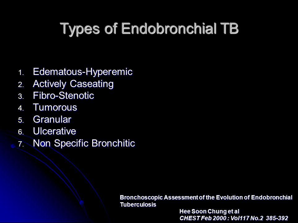 Types of Endobronchial TB 1. Edematous-Hyperemic 2.