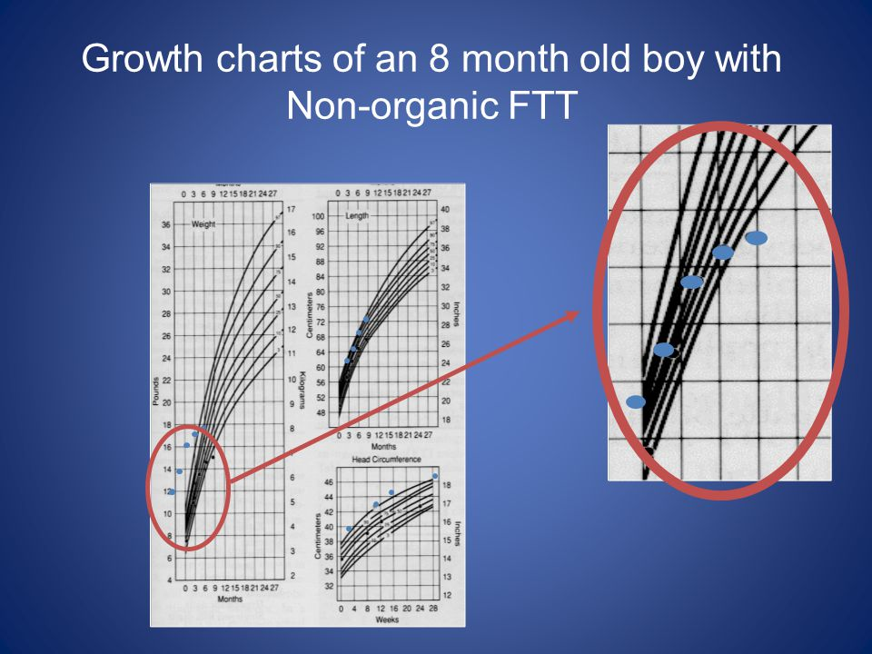 Growth charts of an 8 month old boy with Non-organic FTT