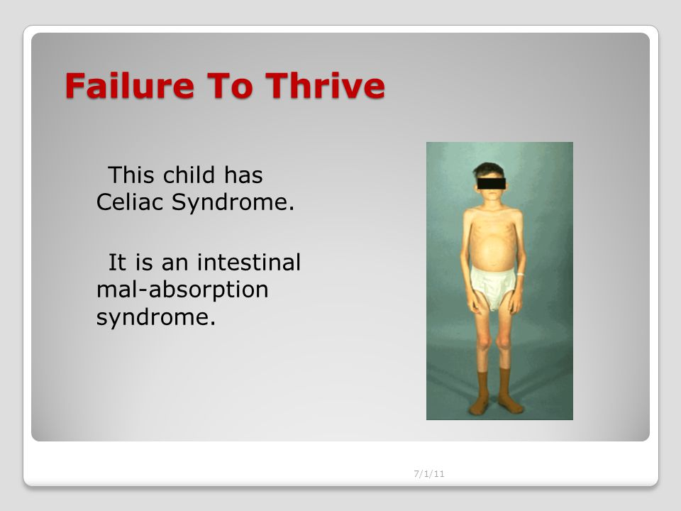 Failure To Thrive This child has Celiac Syndrome.It is an intestinal mal-absorption syndrome.