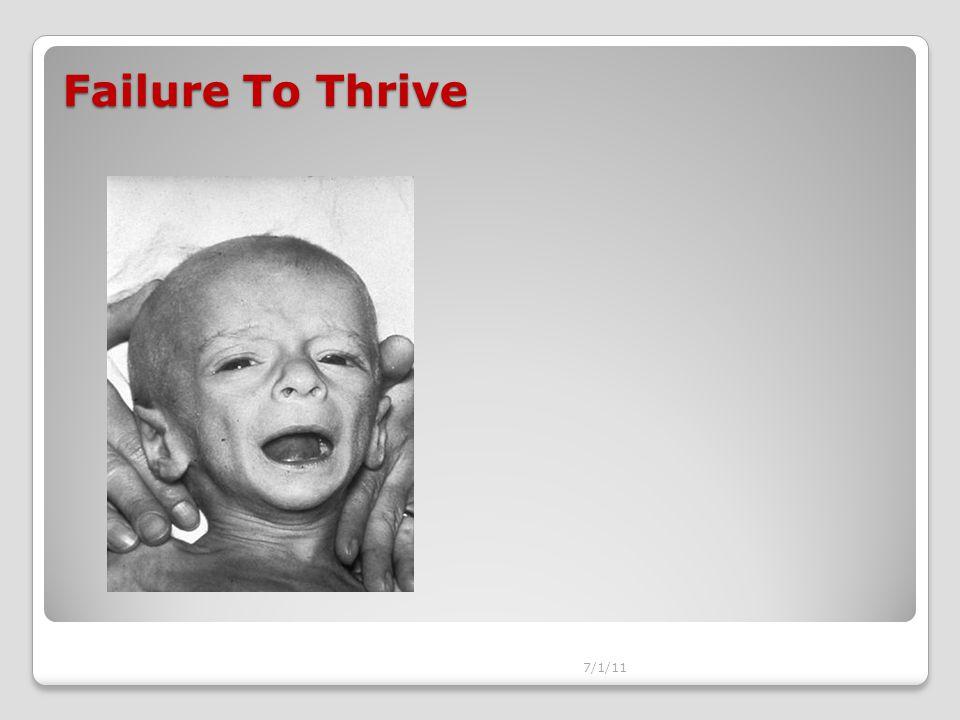 Failure To Thrive 7/1/11