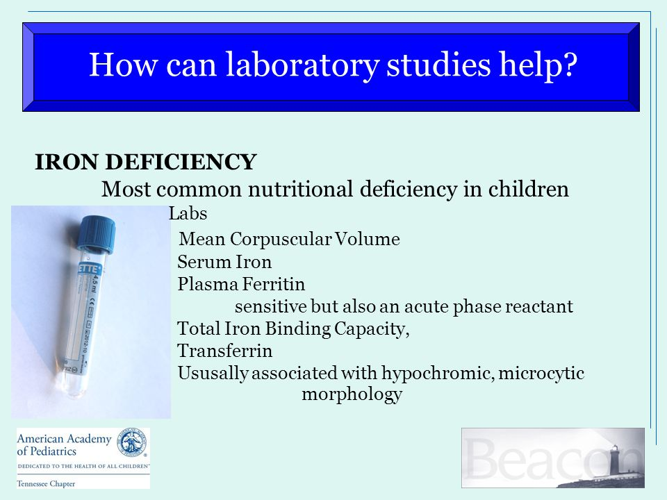 How can laboratory studies help? IRON DEFICIENCY Most common nutritional deficiency in children Labs Mean Corpuscular Volume Serum Iron Plasma Ferriti