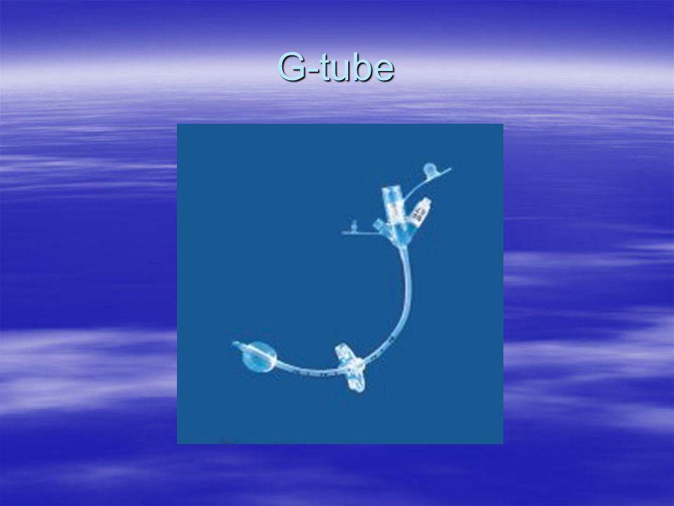 G-tube