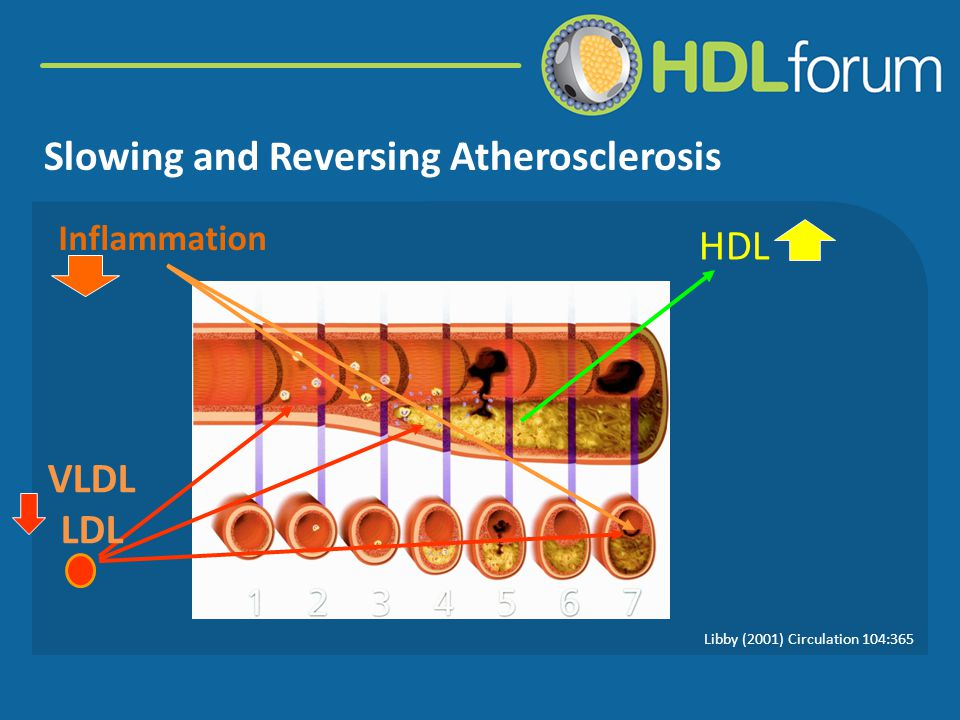 Slowing and Reversing Atherosclerosis VLDL LDL HDL Inflammation Libby (2001) Circulation 104:365