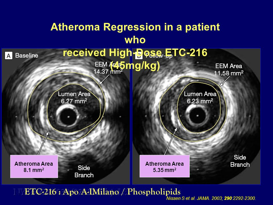 Atheroma Regression in a patient who received High-Dose ETC-216 (45mg/kg) Atheroma Area 8.1 mm 2 Atheroma Area 5.35 mm 2 Nissen S et al.